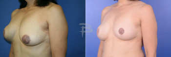 Side: 58 year old -Revision of right Latissimus Flap reconstruction with right implant exchange and left circumvertical mastopexy