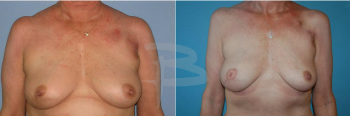 TRAM flap reconstruction right breast following skin sparing mastectomy