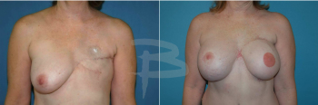 Delayed reconstruction left breast with TRAM flap and right breast reduction