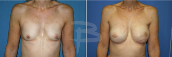 Delayed reconstruction left breast with TRAM flap and left mastopexy
