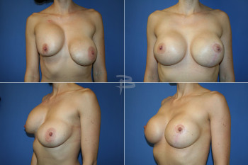 Before : 29 year old - Silicone implants with capsular contracture;  After:-Silicone implant exchange with capsulotomies and left mastopexy