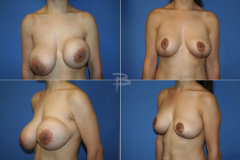 Before: 23 year old-Prior prepectoral saline breast augmentation; After: -Exchange of implants to silicone and reposition to subpectoral with mastopexy