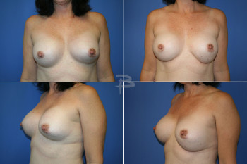 Before: 25 year old silicone breast implants; After: -Exchange of silicone breast implants