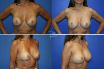 Before:  25 year old  saline implants prepectoral with capsular contracture; After: Exchange of saline implants to silicone and reposition to subpectoral with capsulectomies