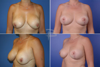 Before - 45 year old- Silicone breast implants with capsular contracture; After- Exchange of silicone implants with capsulotomies with mastopexy.