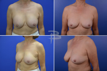 66 year old-prepectoral silicone implants with capsular contracture; After: exchange of implants from 275cc to 234cc and reposition to subpectoral with capsulotomies