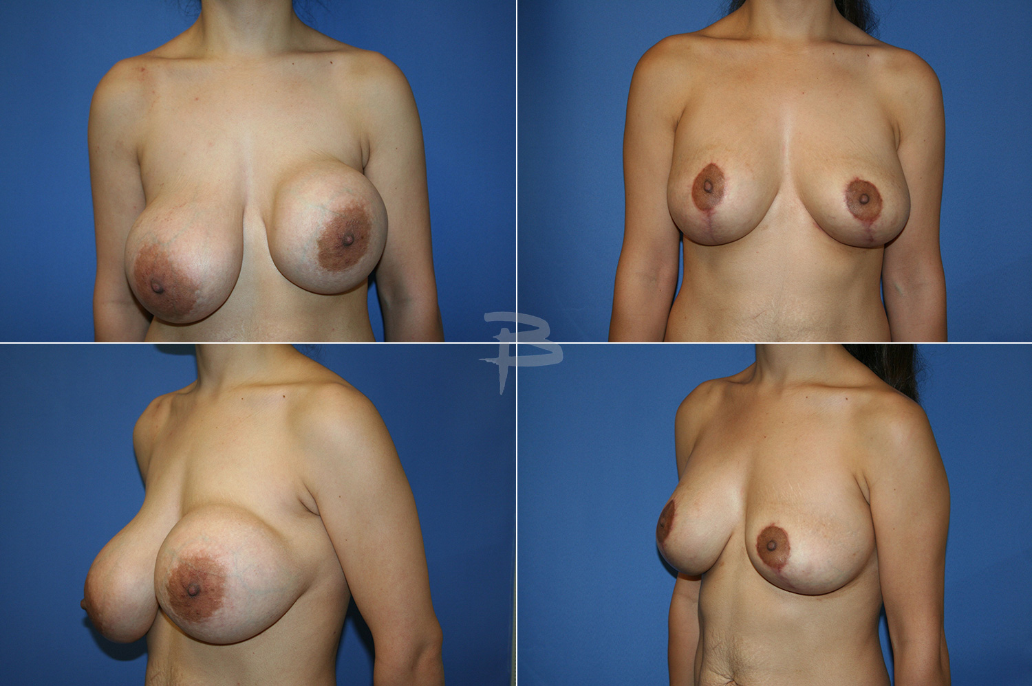 Louisville ky boob implants — photo 6